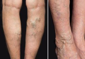 cea mai bună cremă de la picioarele varicoase