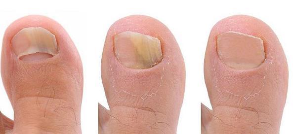 Cel mai bun tratament pentru ciuperca piciorului, micoza unghie, mod de administrare