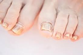 Cel mai bun tratament pentru ciuperca piciorului, micoza unghie
